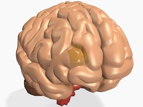Through Polymer Vias based 3D integration simplifies the path towards high-resolution brain machine interfaces. © 2016 KAUST
