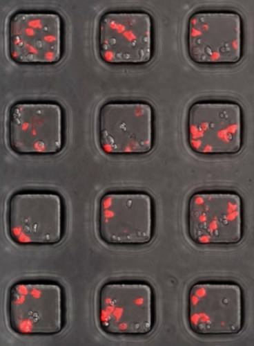 Cancer cells in sample wells turn red when killed by the T-cells engineered to include the chimeric antigen receptor. PHOTO COURTESY OF KRISHANU SAHA